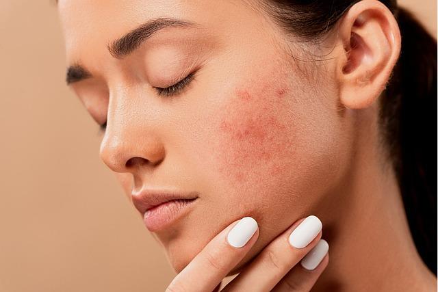 remedios-caseros-para-el-acné